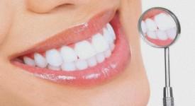 Виды Отбеливания Зубов – Анализ