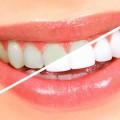 Вредно ли Отбеливание Зубов – Вся Правда