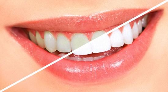 Вредно ли отбеливание зубов
