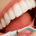 Как Избавиться от Зубного Камня – Эффективные Методы