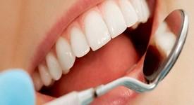 Как Избавиться от Зубного Камня — Эффективные Методы