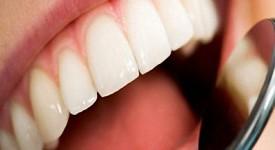 Особенности Лечения Кариеса Передних Зубов