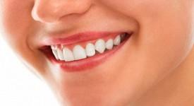 Отбеливание Зубов Активированным Углем — Плюсы и Минусы