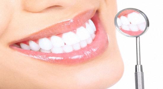 Отбеливание зубов профессиональное